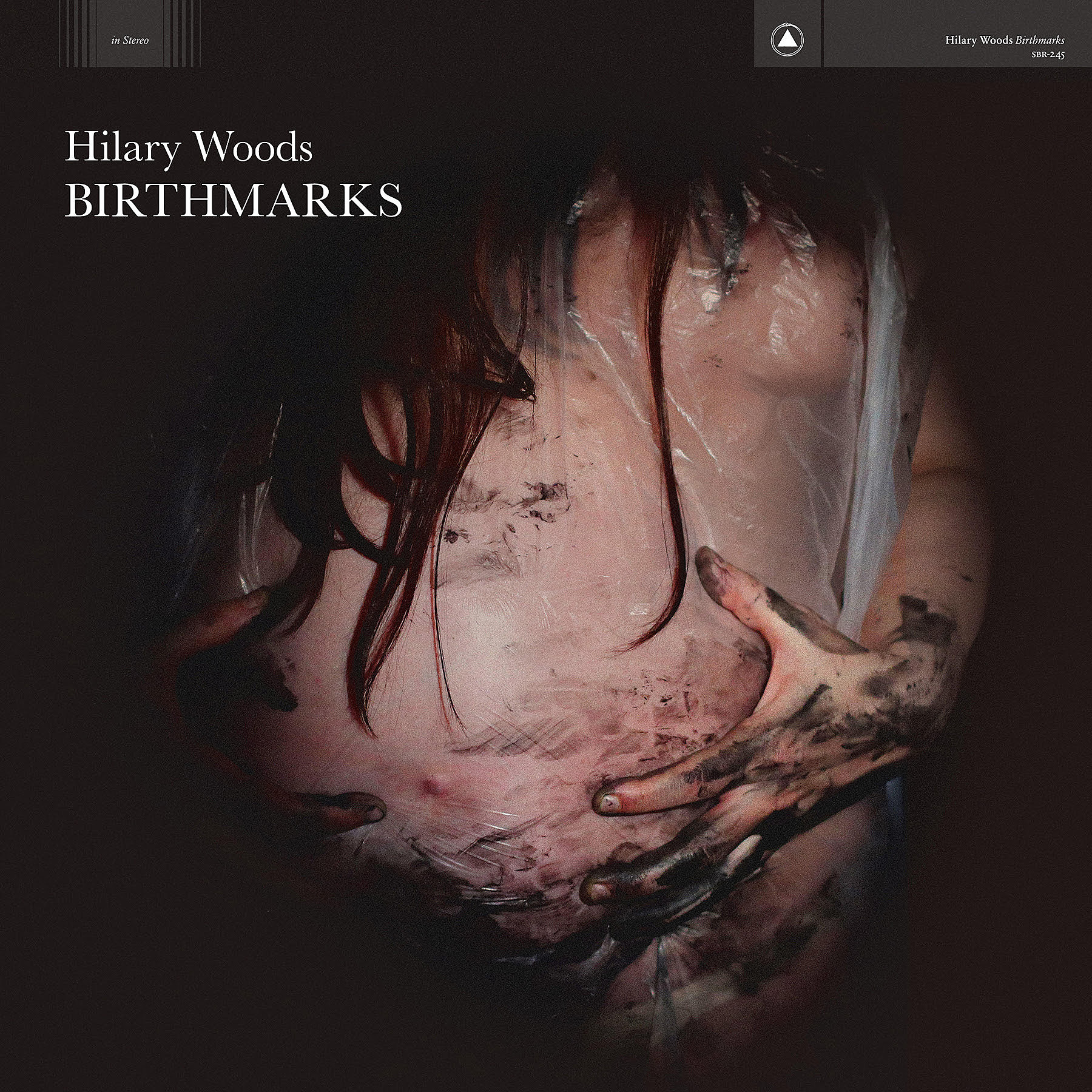 Hilary Woods Birthmarks